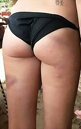 Spanked-and-Bruised_DCE